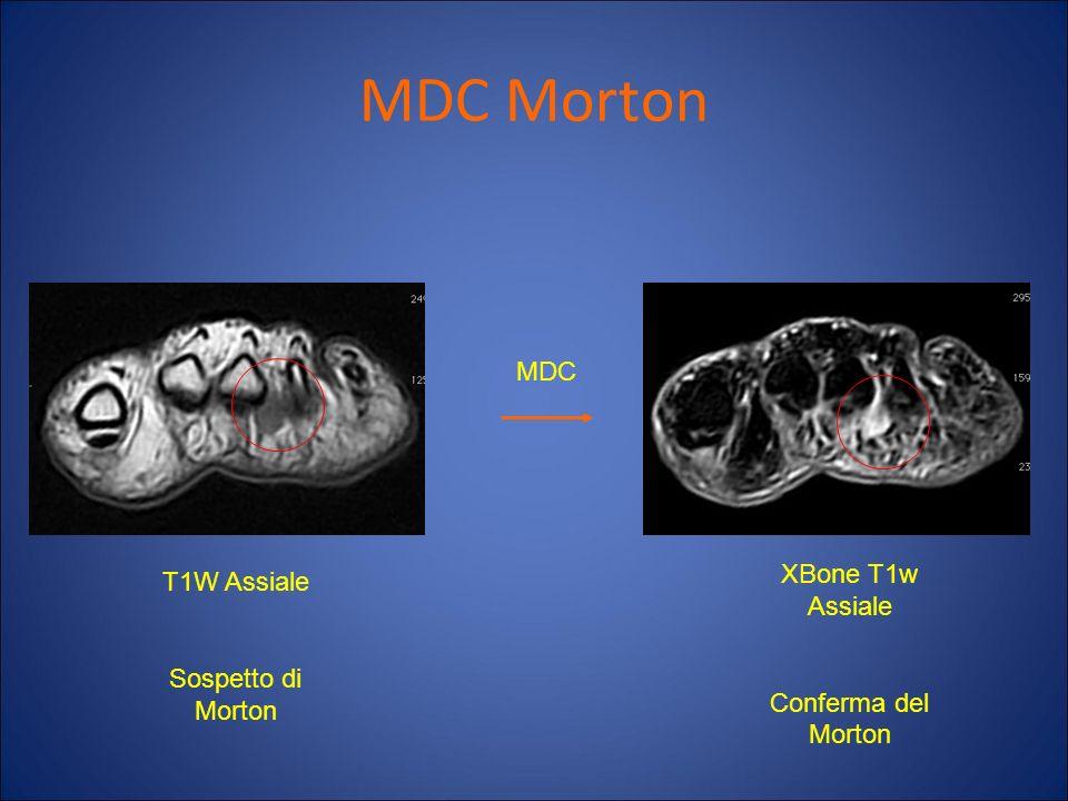 MDC Morton MDC T1W Assiale Sospetto di Morton XBone T1w Assiale Conferma del Morton
