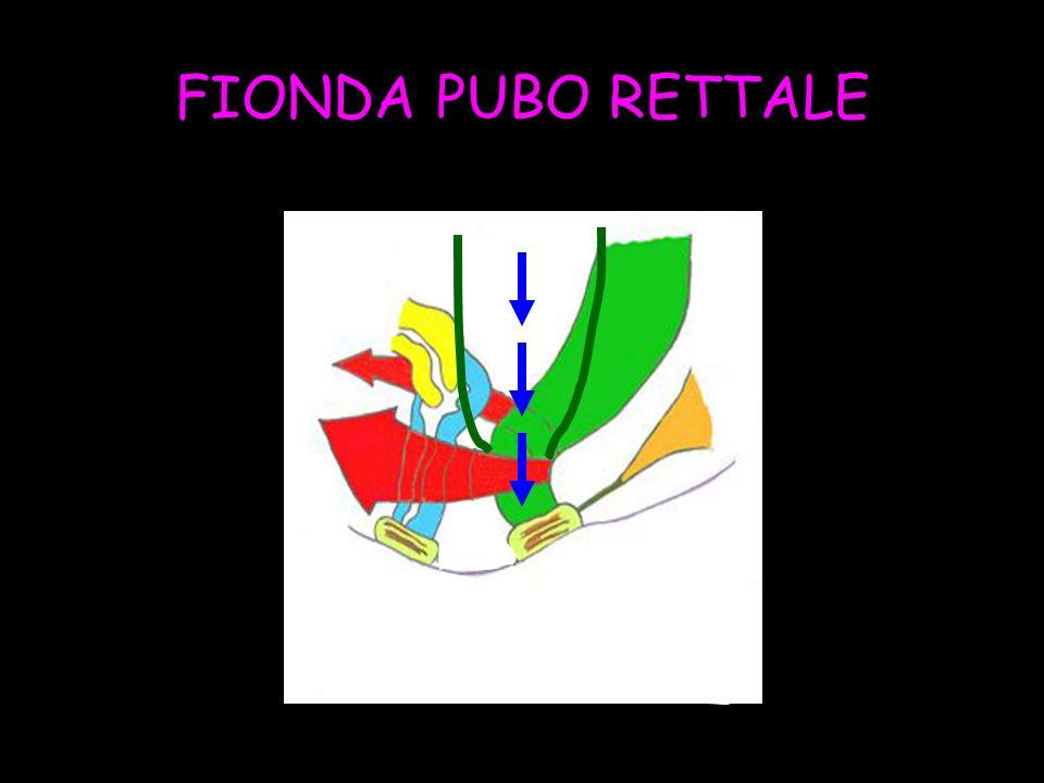 FIONDA PUBO RETTALE