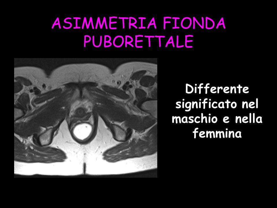 ASIMMETRIA FIONDA PUBORETTALE Differente significato nel maschio e nella femmina
