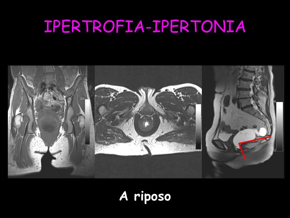 IPERTROFIA-IPERTONIA A riposo
