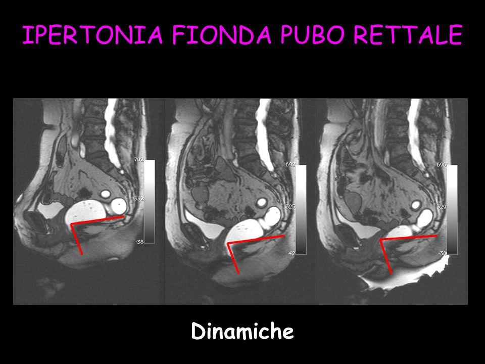 IPERTONIA FIONDA PUBO RETTALE Dinamiche