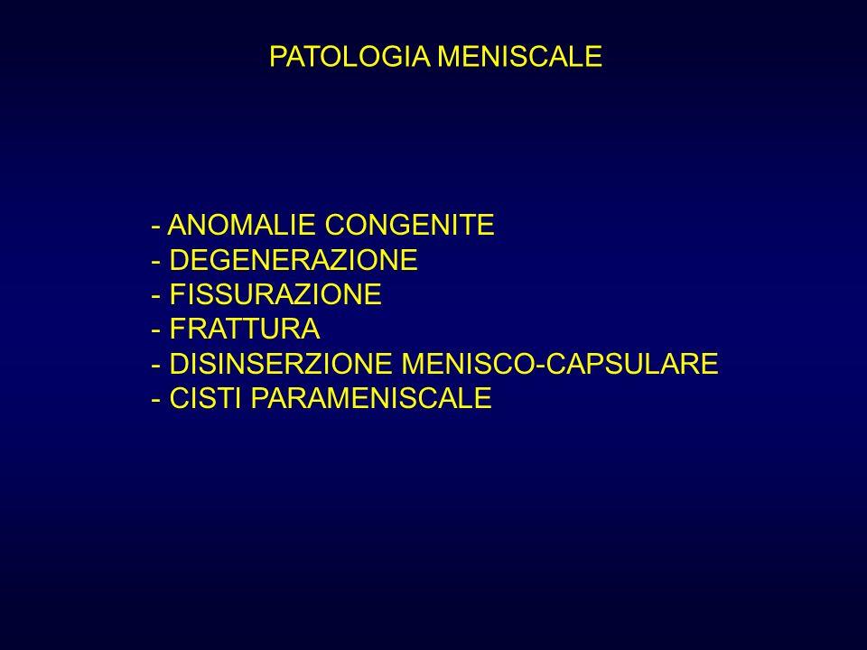 PATOLOGIA MENISCALE - ANOMALIE CONGENITE - DEGENERAZIONE - FISSURAZIONE - FRATTURA - DISINSERZIONE MENISCO-CAPSULARE - CISTI PARAMENISCALE