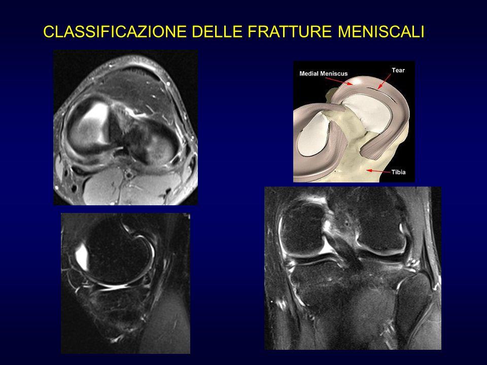 CLASSIFICAZIONE DELLE FRATTURE MENISCALI Lesione trasversale