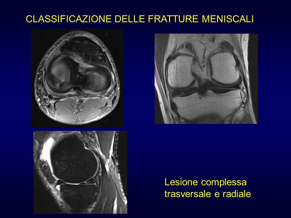 CLASSIFICAZIONE DELLE FRATTURE MENISCALI Lesione complessa trasversale e radiale