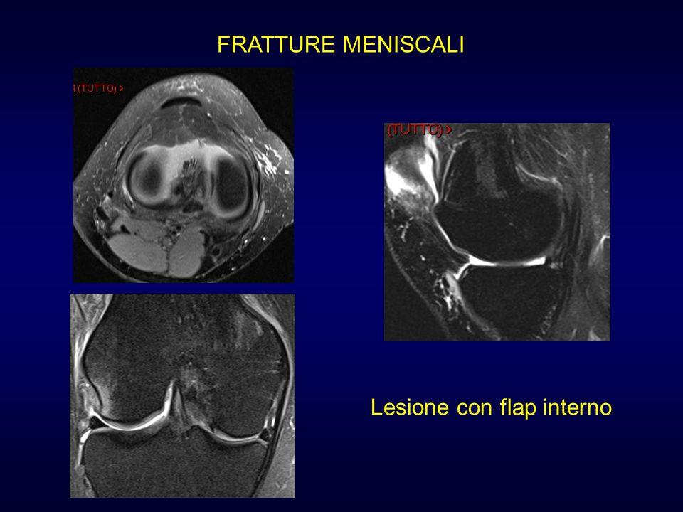FRATTURE MENISCALI Lesione con flap interno