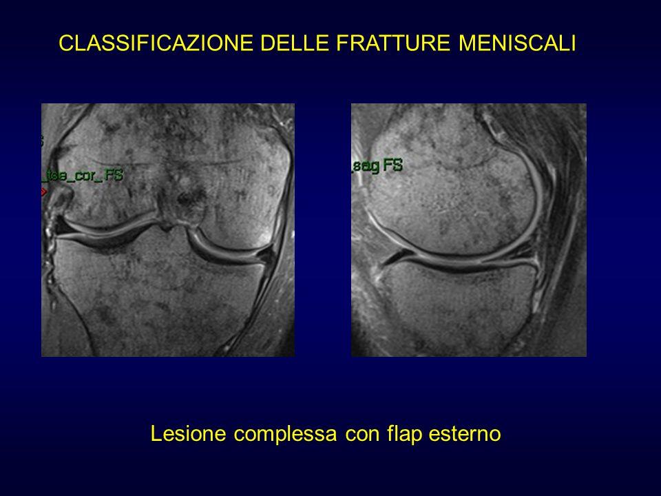 CLASSIFICAZIONE DELLE FRATTURE MENISCALI Lesione complessa con flap esterno