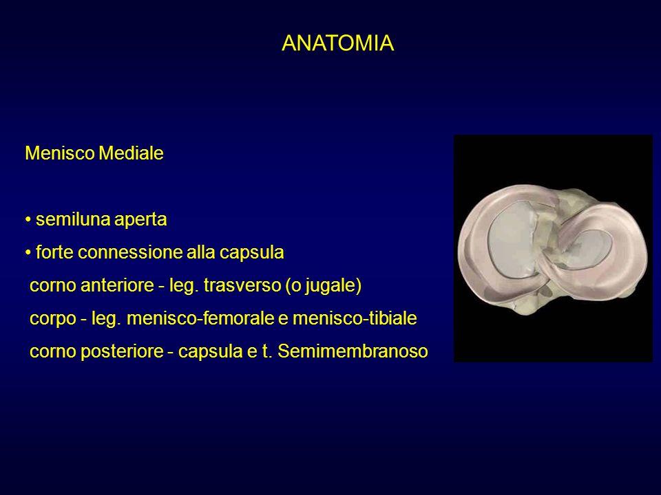 ANATOMIA Menisco Mediale semiluna aperta forte connessione alla capsula corno anteriore - leg. trasverso (o jugale) corpo - leg. menisco-femorale e me