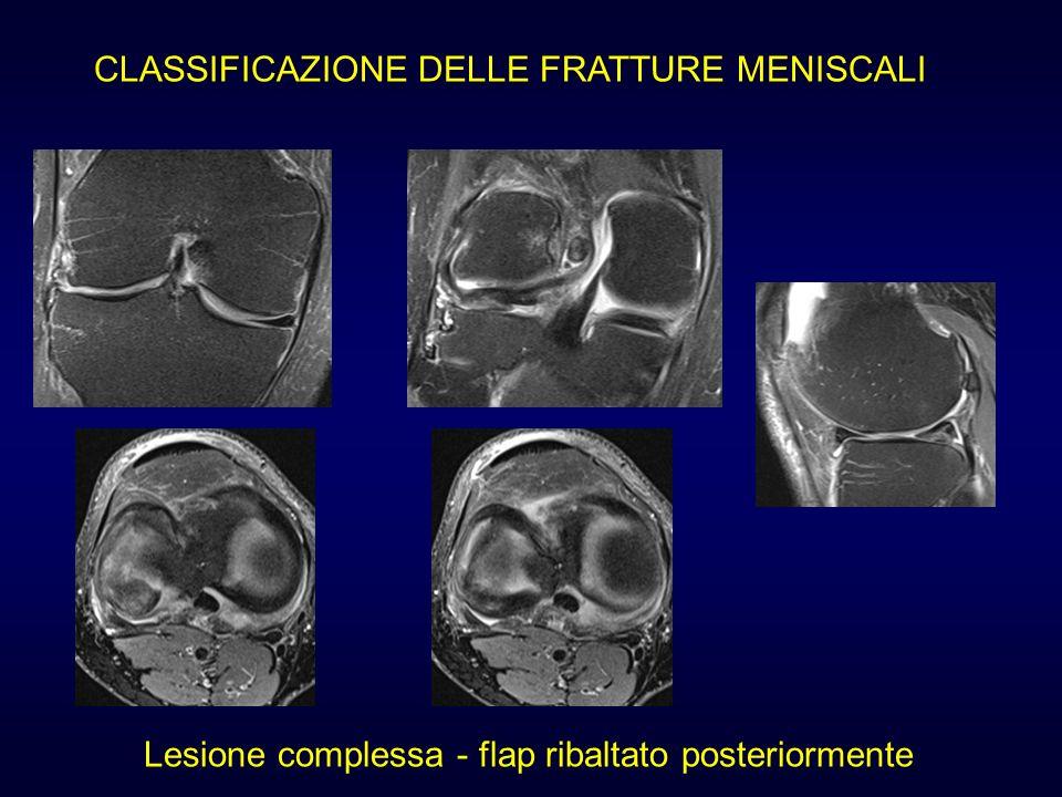 Lesione complessa - flap ribaltato posteriormente
