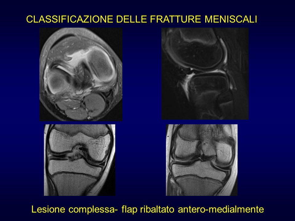 CLASSIFICAZIONE DELLE FRATTURE MENISCALI Lesione complessa- flap ribaltato antero-medialmente