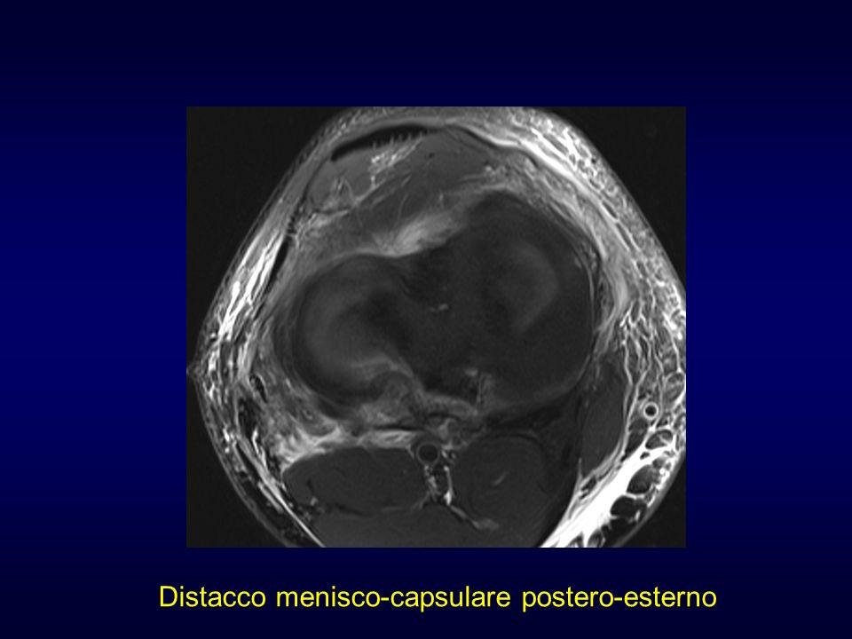 Distacco menisco-capsulare postero-esterno
