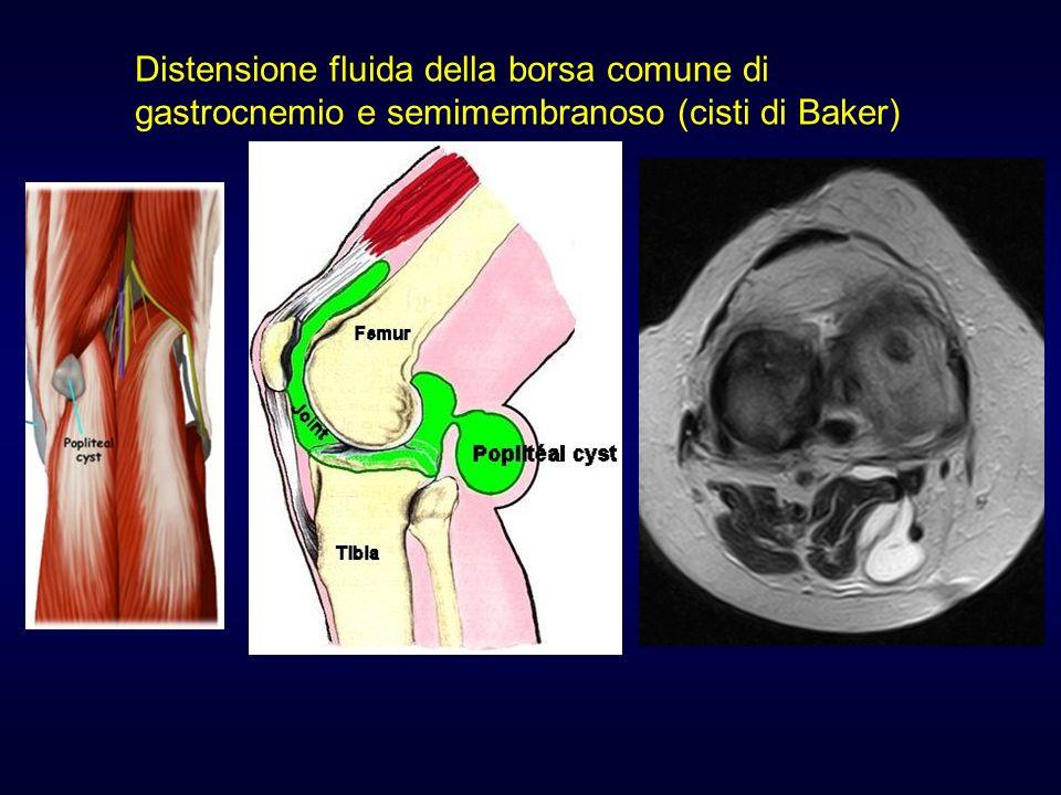 Distensione fluida della borsa comune di gastrocnemio e semimembranoso (cisti di Baker)