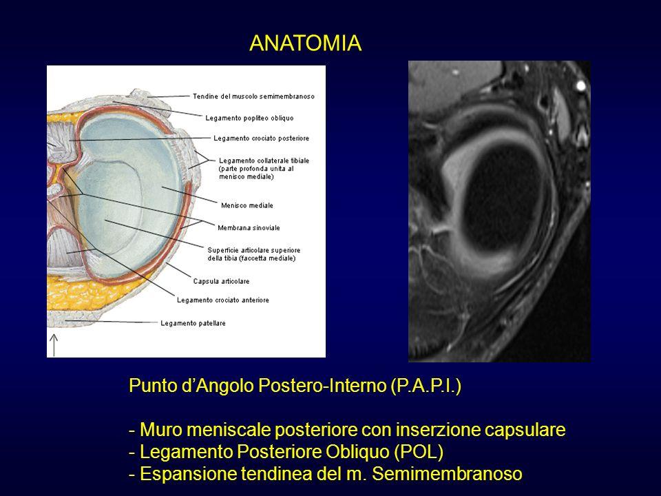 ANATOMIA Punto dAngolo Postero-Interno (P.A.P.I.) - Muro meniscale posteriore con inserzione capsulare - Legamento Posteriore Obliquo (POL) - Espansio