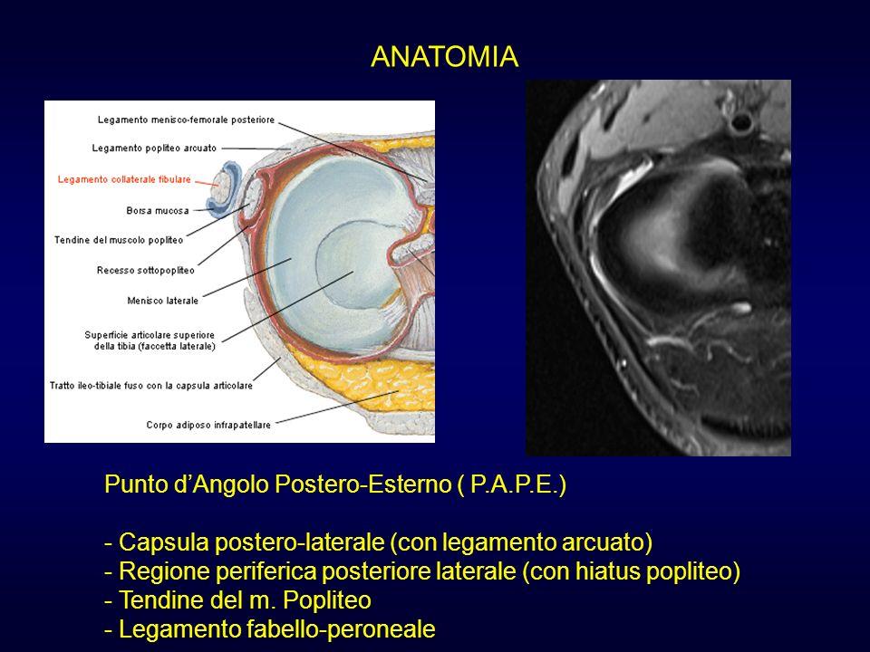 ANATOMIA Punto dAngolo Postero-Esterno ( P.A.P.E.) - Capsula postero-laterale (con legamento arcuato) - Regione periferica posteriore laterale (con hi
