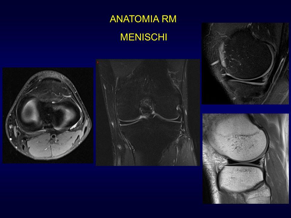 CLASSIFICAZIONE DELLE FRATTURE MENISCALI Nuova lesione su menisco operato