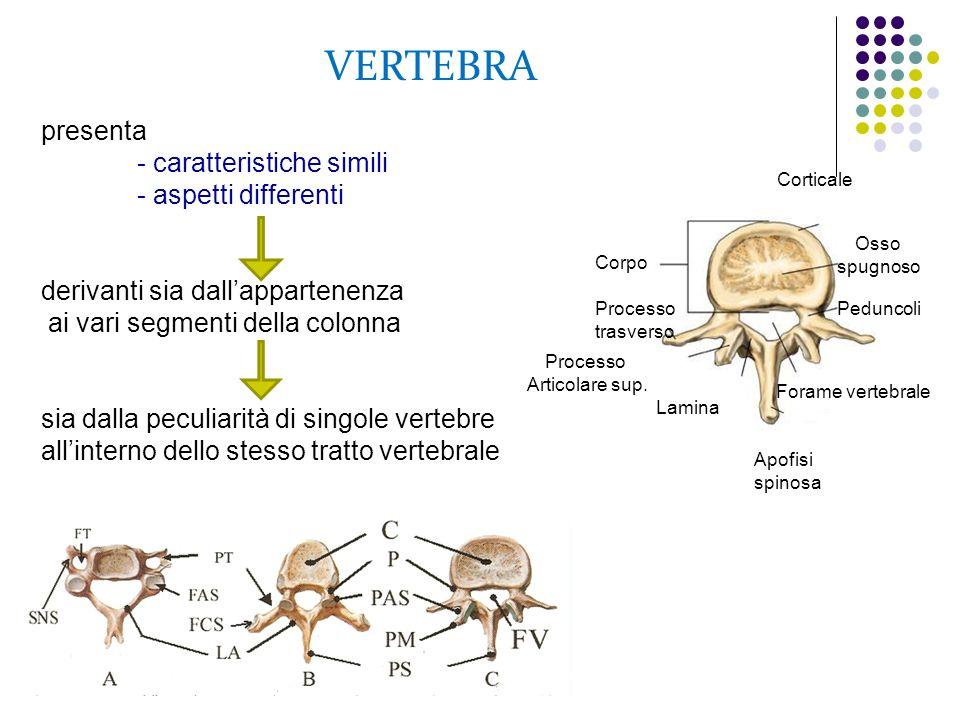 VERTEBRA Corpo Processo trasverso Processo Articolare sup. Lamina Apofisi spinosa Forame vertebrale Peduncoli Corticale Osso spugnoso presenta - carat