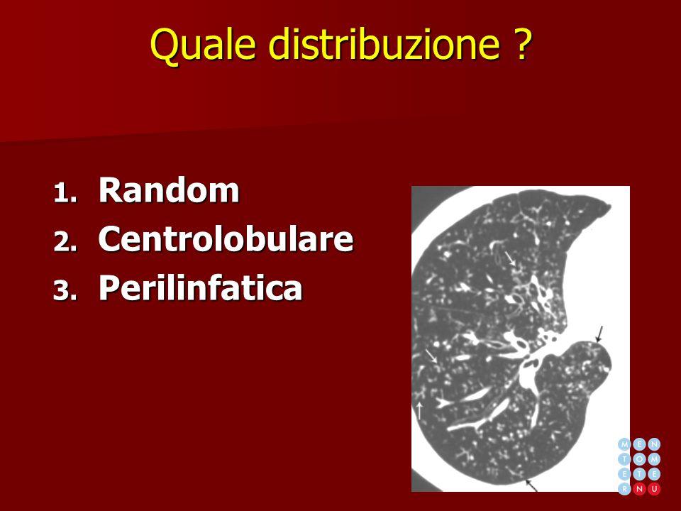 Quale distribuzione ? 1. Random 2. Centrolobulare 3. Perilinfatica