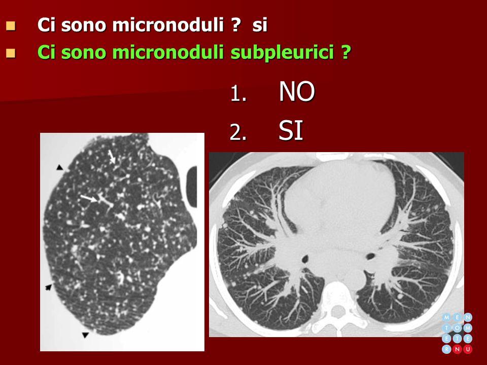 Ci sono micronoduli ? si Ci sono micronoduli ? si Ci sono micronoduli subpleurici ? Ci sono micronoduli subpleurici ? 1. NO 2. SI