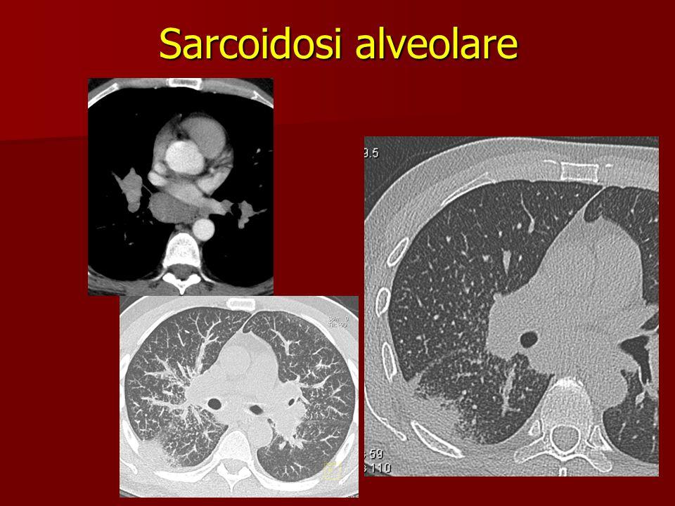 Sarcoidosi alveolare