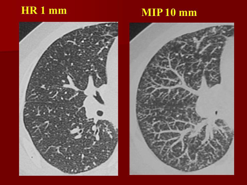 LN ilari bilaterali simmetrici broncopolmonari