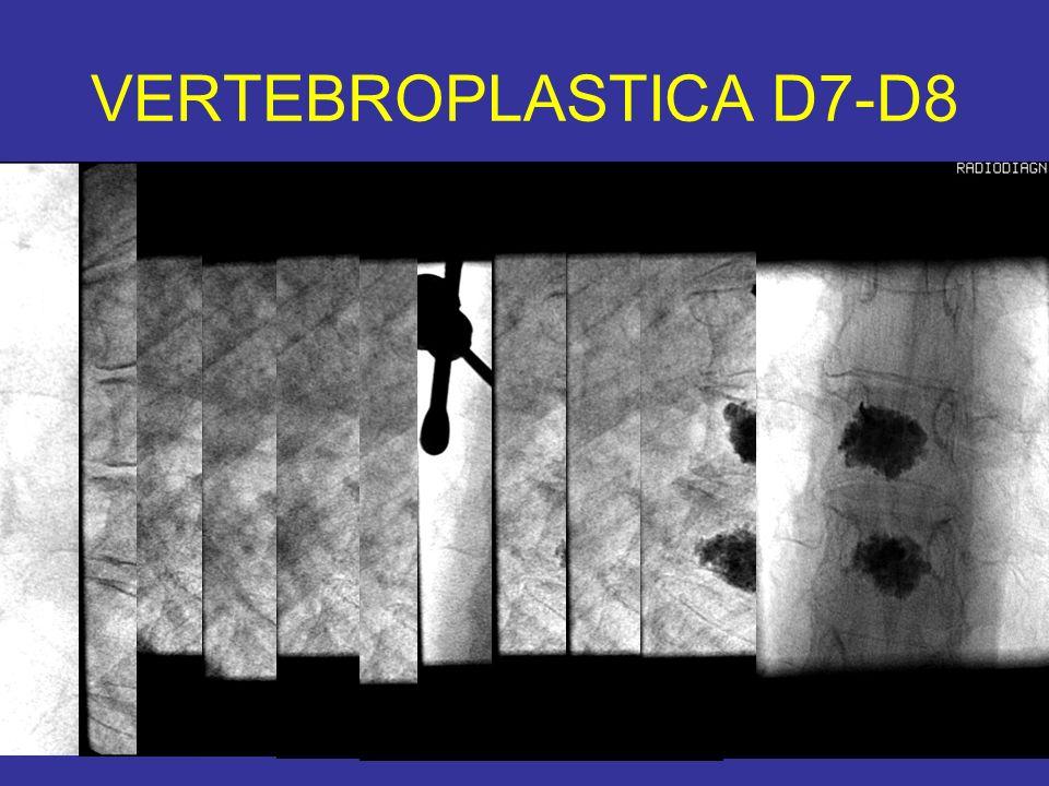 VERTEBROPLASTICA D7-D8