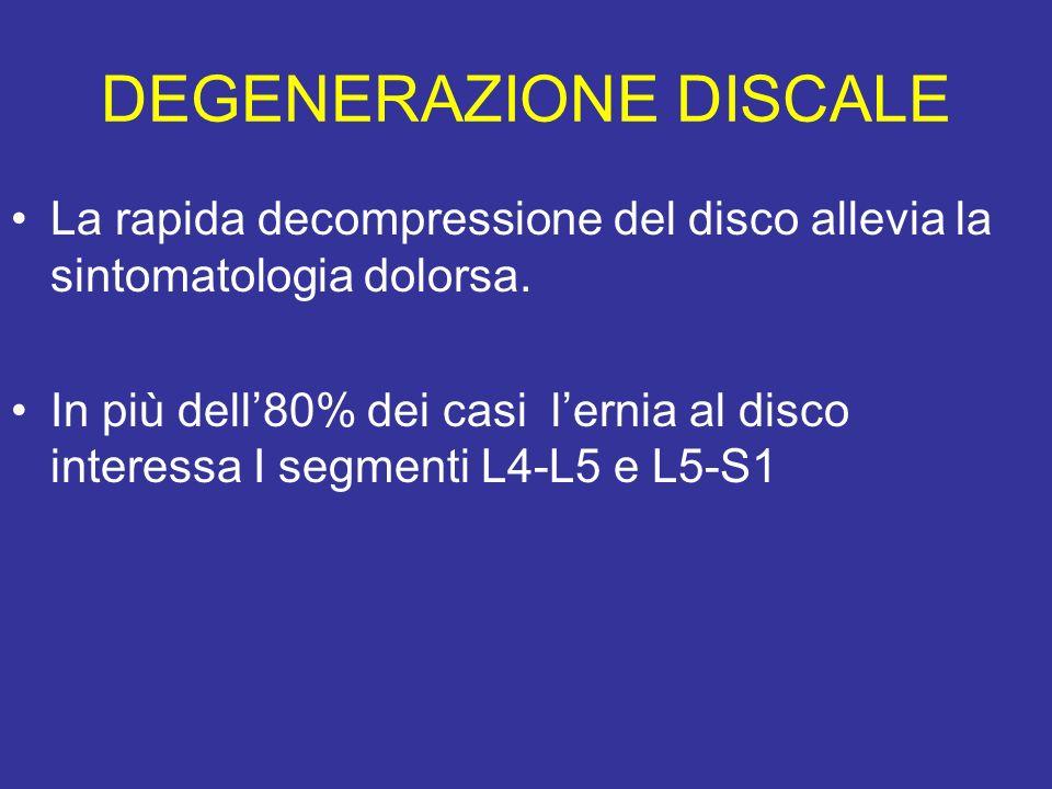 DEGENERAZIONE DISCALE La rapida decompressione del disco allevia la sintomatologia dolorsa. In più dell80% dei casi lernia al disco interessa I segmen