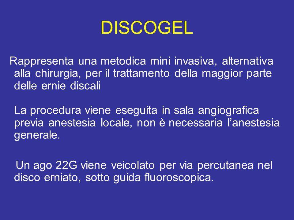 DISCOGEL Rappresenta una metodica mini invasiva, alternativa alla chirurgia, per il trattamento della maggior parte delle ernie discali La procedura v