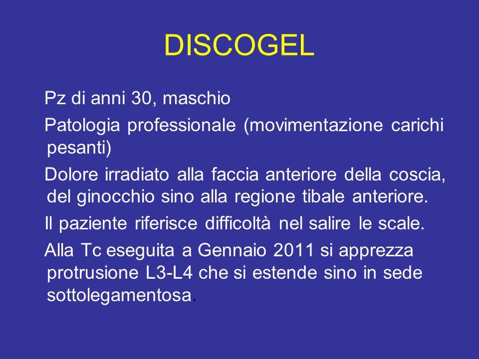 DISCOGEL Pz di anni 30, maschio Patologia professionale (movimentazione carichi pesanti) Dolore irradiato alla faccia anteriore della coscia, del gino