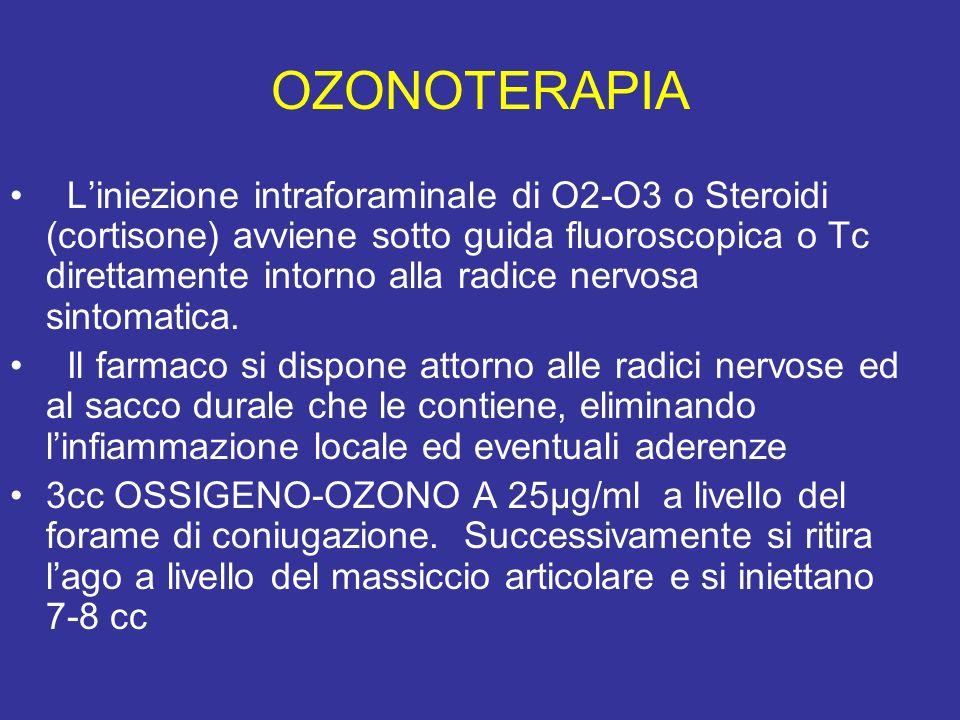 OZONOTERAPIA Liniezione intraforaminale di O2-O3 o Steroidi (cortisone) avviene sotto guida fluoroscopica o Tc direttamente intorno alla radice nervos
