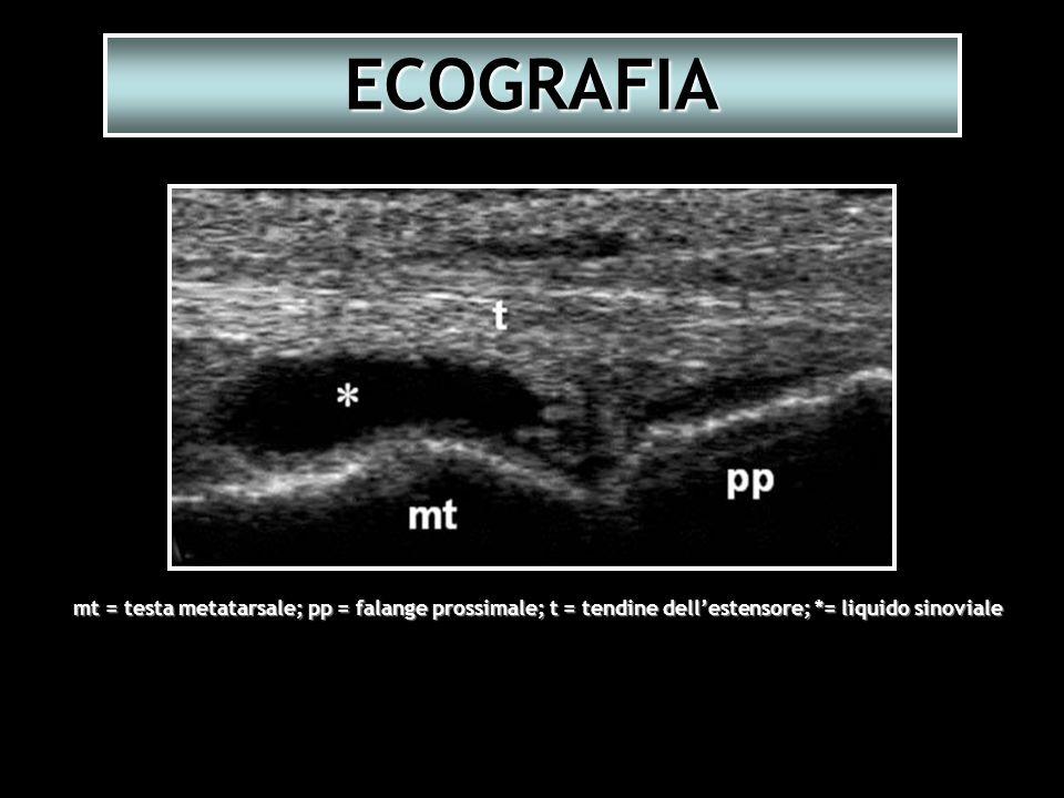 ECOGRAFIA mt = testa metatarsale; pp = falange prossimale; t = tendine dellestensore; *= liquido sinoviale
