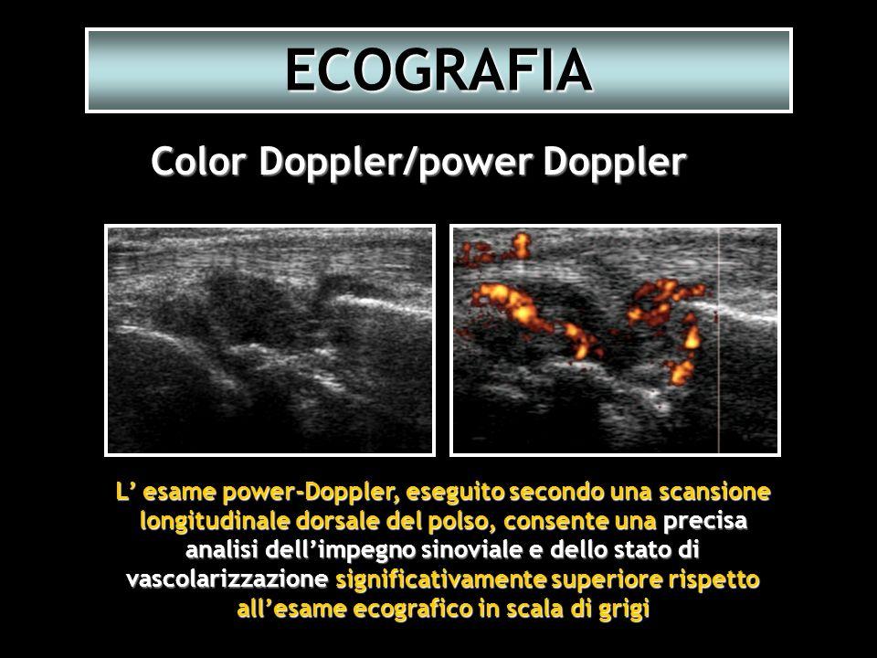 L esame power-Doppler, eseguito secondo una scansione longitudinale dorsale del polso, consente una precisa analisi dellimpegno sinoviale e dello stat