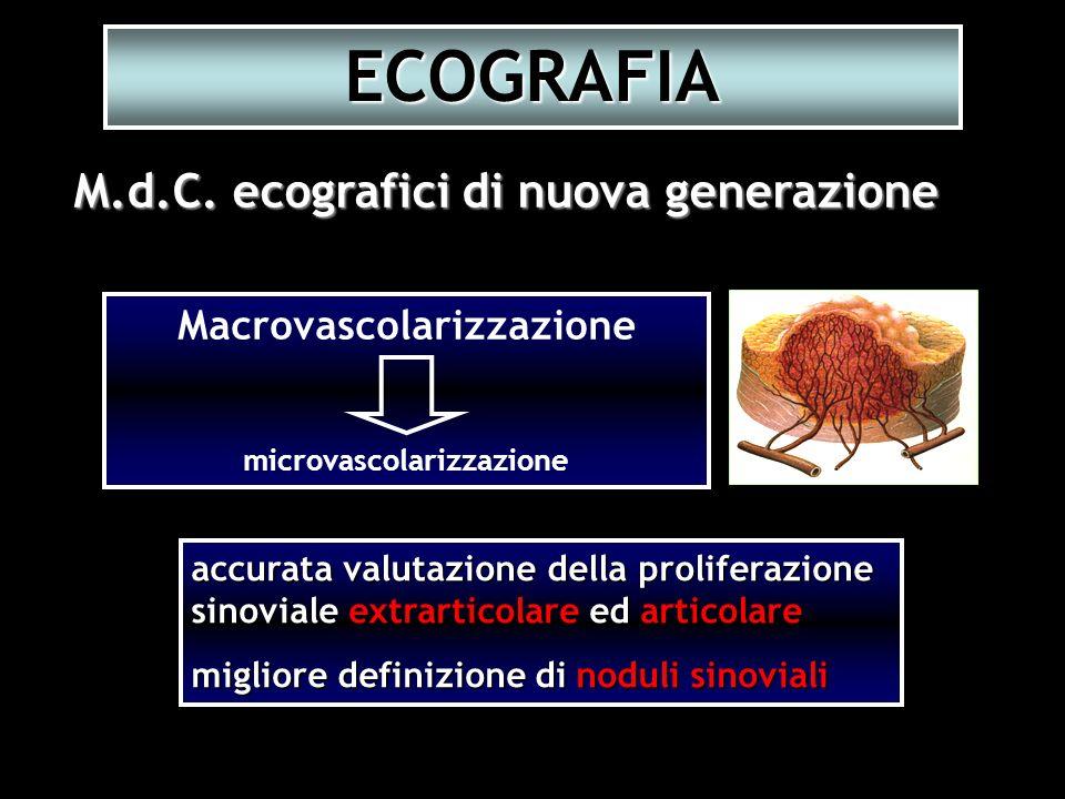 accurata valutazione della proliferazione sinoviale extrarticolare ed articolare migliore definizione di noduli sinoviali M.d.C. ecografici di nuova g