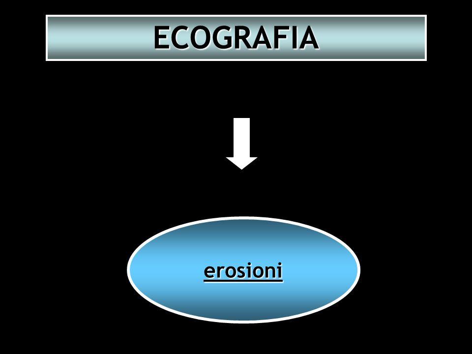 erosioni ECOGRAFIA