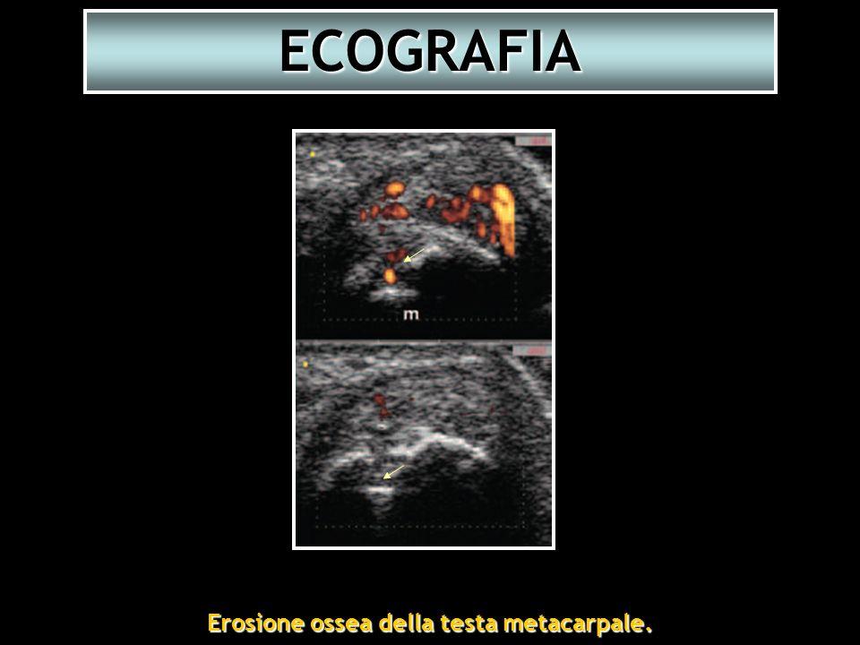 Erosione ossea della testa metacarpale. Erosione ossea della testa metacarpale. ECOGRAFIA