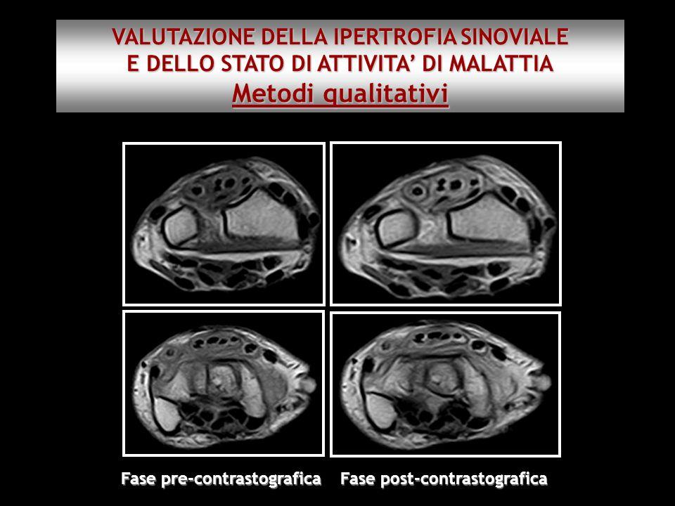 Fase pre-contrastografica Fase post-contrastografica VALUTAZIONE DELLA IPERTROFIA SINOVIALE E DELLO STATO DI ATTIVITA DI MALATTIA Metodi qualitativi
