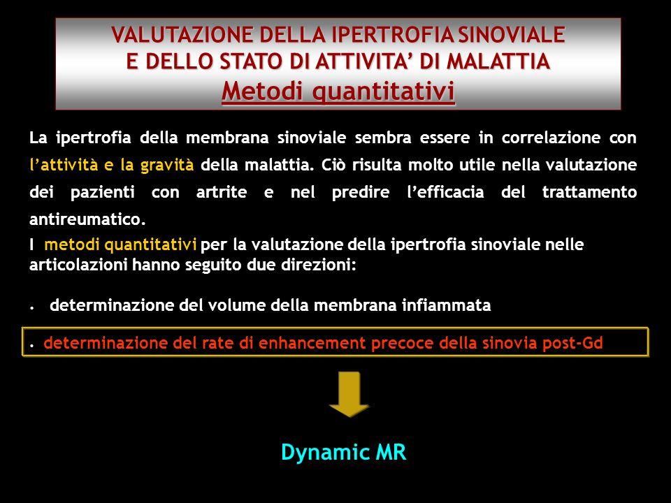 I metodi quantitativi per la valutazione della ipertrofia sinoviale nelle articolazioni hanno seguito due direzioni: determinazione del volume della m