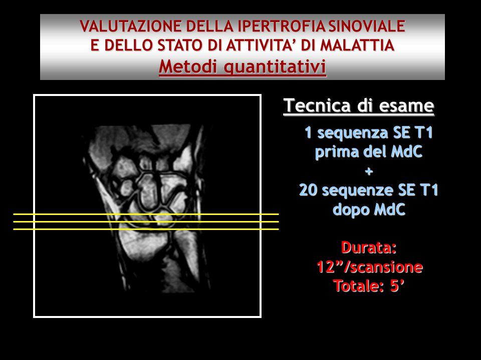 Tecnica di esame 1 sequenza SE T1 prima del MdC + 20 sequenze SE T1 dopo MdC Durata: 12/scansione Totale: 5 VALUTAZIONE DELLA IPERTROFIA SINOVIALE E D