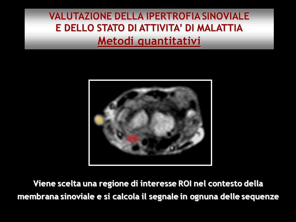 Viene scelta una regione di interesse ROI nel contesto della membrana sinoviale e si calcola il segnale in ognuna delle sequenze VALUTAZIONE DELLA IPE
