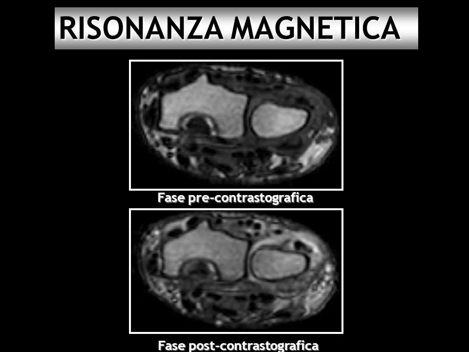 Fase post-contrastografica Fase pre-contrastografica RISONANZA MAGNETICA