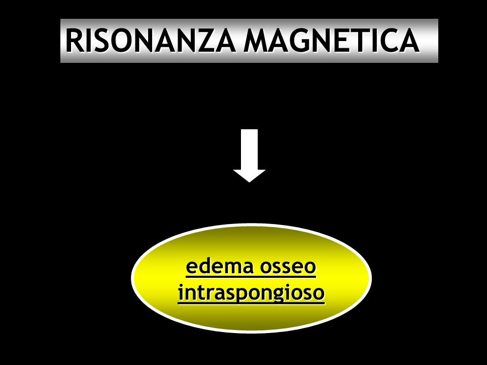 RISONANZA MAGNETICA edema osseo intraspongioso