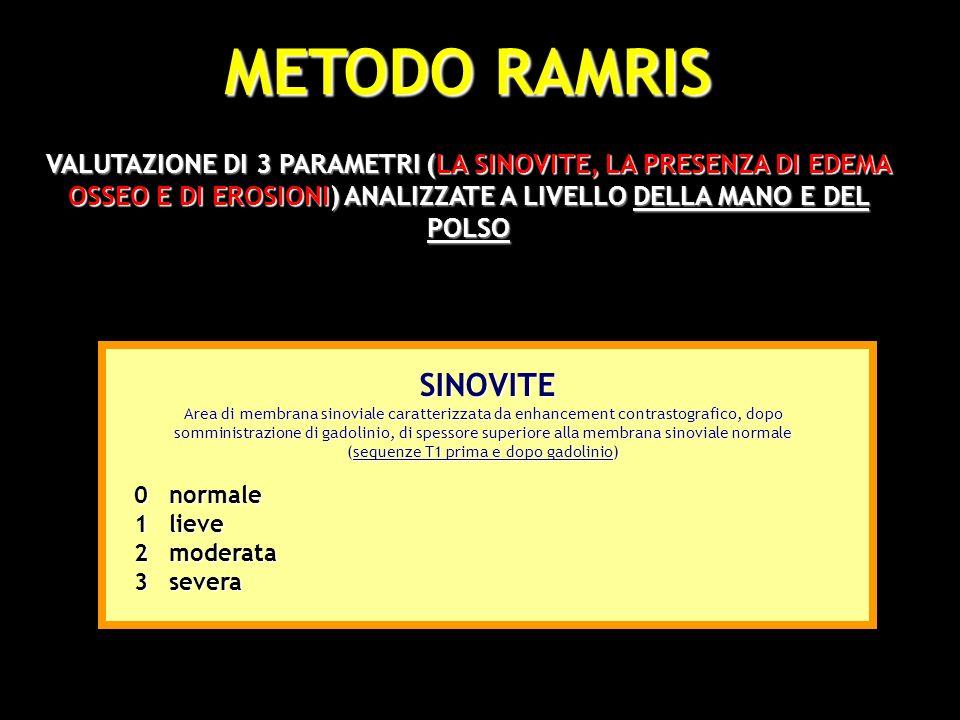 METODO RAMRIS VALUTAZIONE DI 3 PARAMETRI (LA SINOVITE, LA PRESENZA DI EDEMA OSSEO E DI EROSIONI) ANALIZZATE A LIVELLO DELLA MANO E DEL POLSO 12 0 SINO