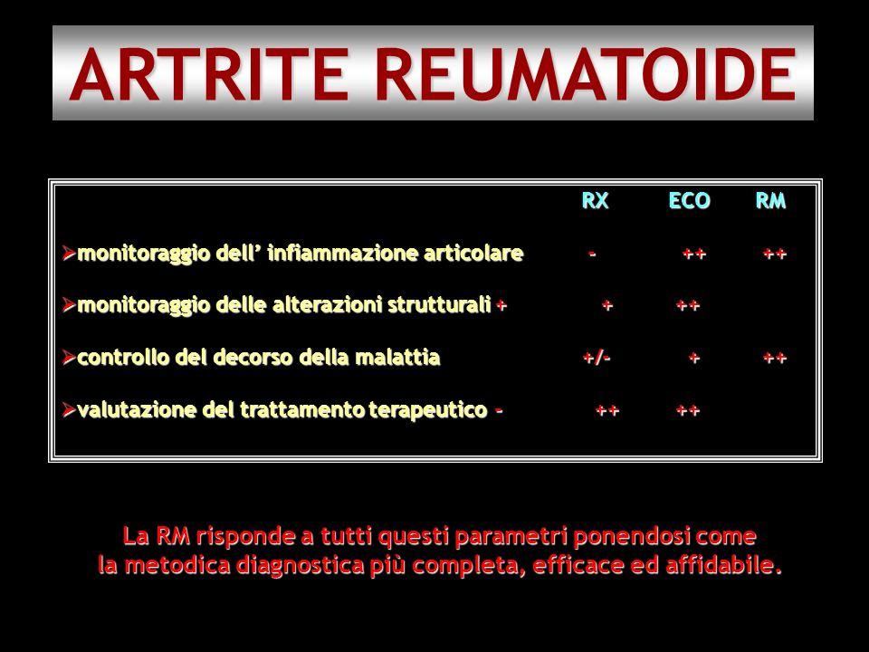 ARTRITE REUMATOIDE RXECORM monitoraggio dell infiammazione articolare - ++ ++ monitoraggio dell infiammazione articolare - ++ ++ monitoraggio delle al