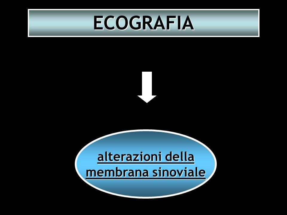 alterazioni della membrana sinoviale ECOGRAFIA