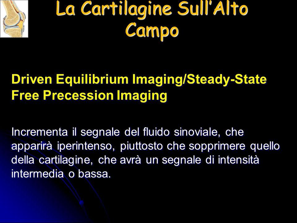Driven Equilibrium Imaging/Steady-State Free Precession Imaging Incrementa il segnale del fluido sinoviale, che apparirà iperintenso, piuttosto che so