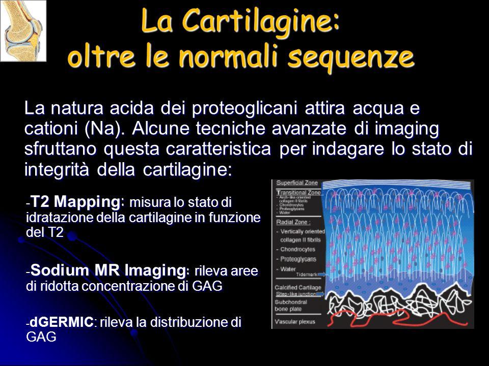 La Cartilagine: oltre le normali sequenze La natura acida dei proteoglicani attira acqua e cationi (Na). Alcune tecniche avanzate di imaging sfruttano