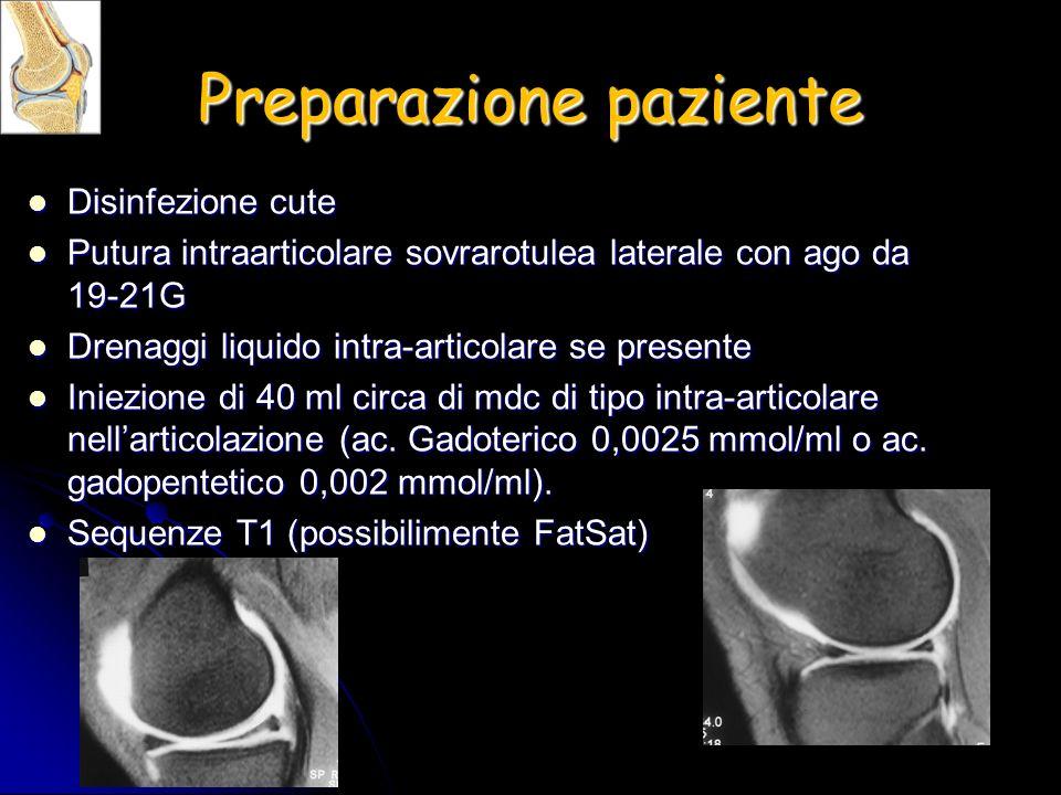 Preparazione paziente Disinfezione cute Disinfezione cute Putura intraarticolare sovrarotulea laterale con ago da 19-21G Putura intraarticolare sovrar