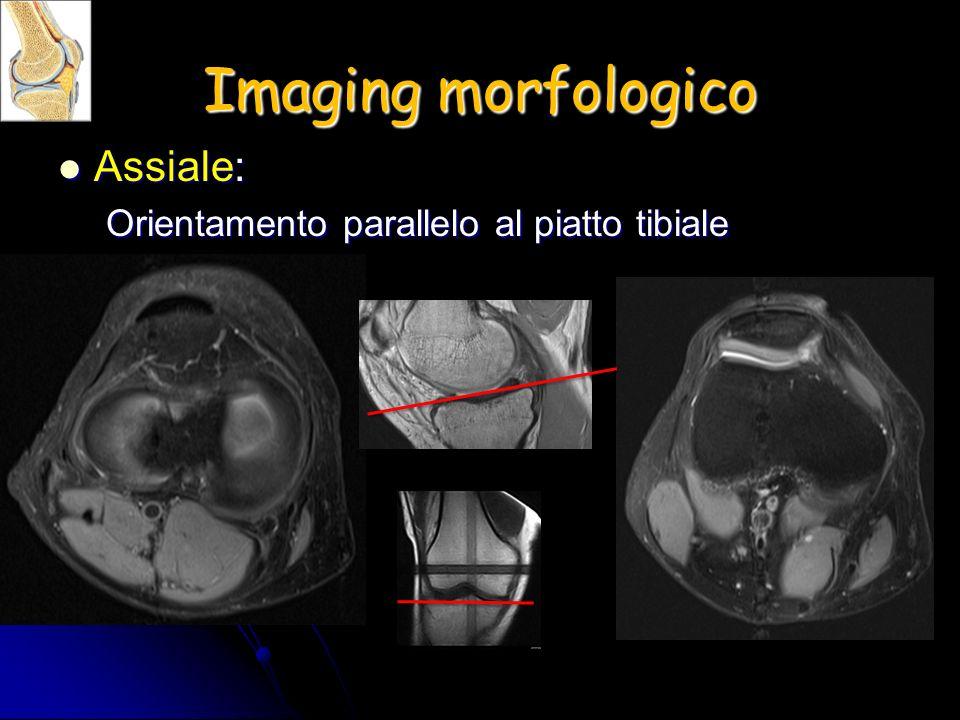 Imaging morfologico Assiale: Assiale: Orientamento parallelo al piatto tibiale
