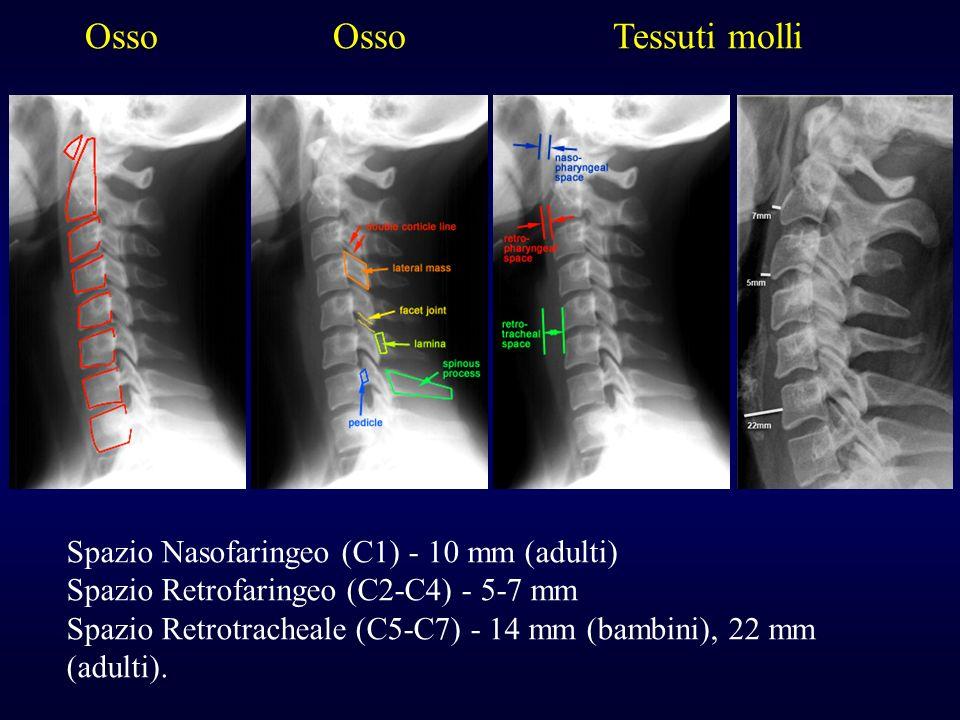Osso Osso Tessuti molli Spazio Nasofaringeo (C1) - 10 mm (adulti) Spazio Retrofaringeo (C2-C4) - 5-7 mm Spazio Retrotracheale (C5-C7) - 14 mm (bambini