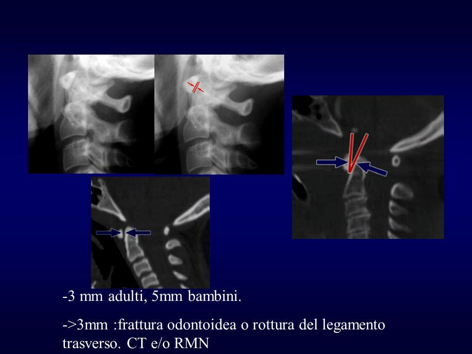 -3 mm adulti, 5mm bambini. ->3mm :frattura odontoidea o rottura del legamento trasverso. CT e/o RMN