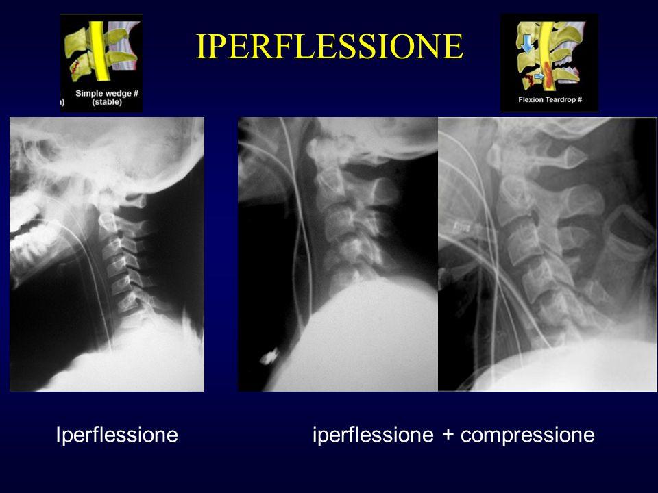 IPERFLESSIONE Iperflessioneiperflessione + compressione