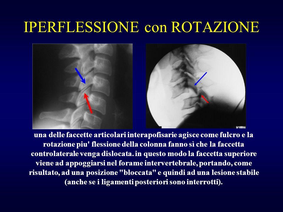 IPERFLESSIONE con ROTAZIONE una delle faccette articolari interapofisarie agisce come fulcro e la rotazione piu' flessione della colonna fanno sì che